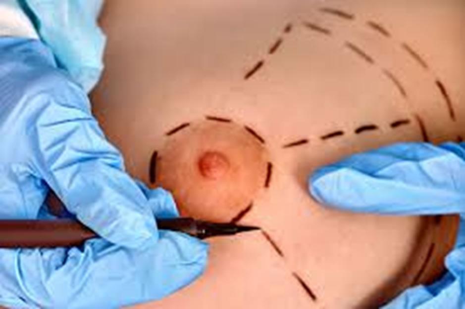 Agénésie mammaire