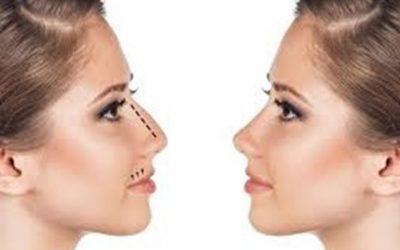 Opération cloison nasale déviée
