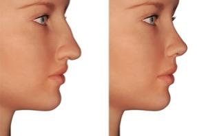 La chirurgie au nez peut améliorer l'estime de soi !