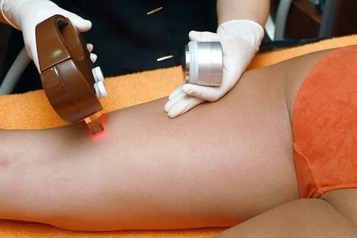epilation definitive lyon