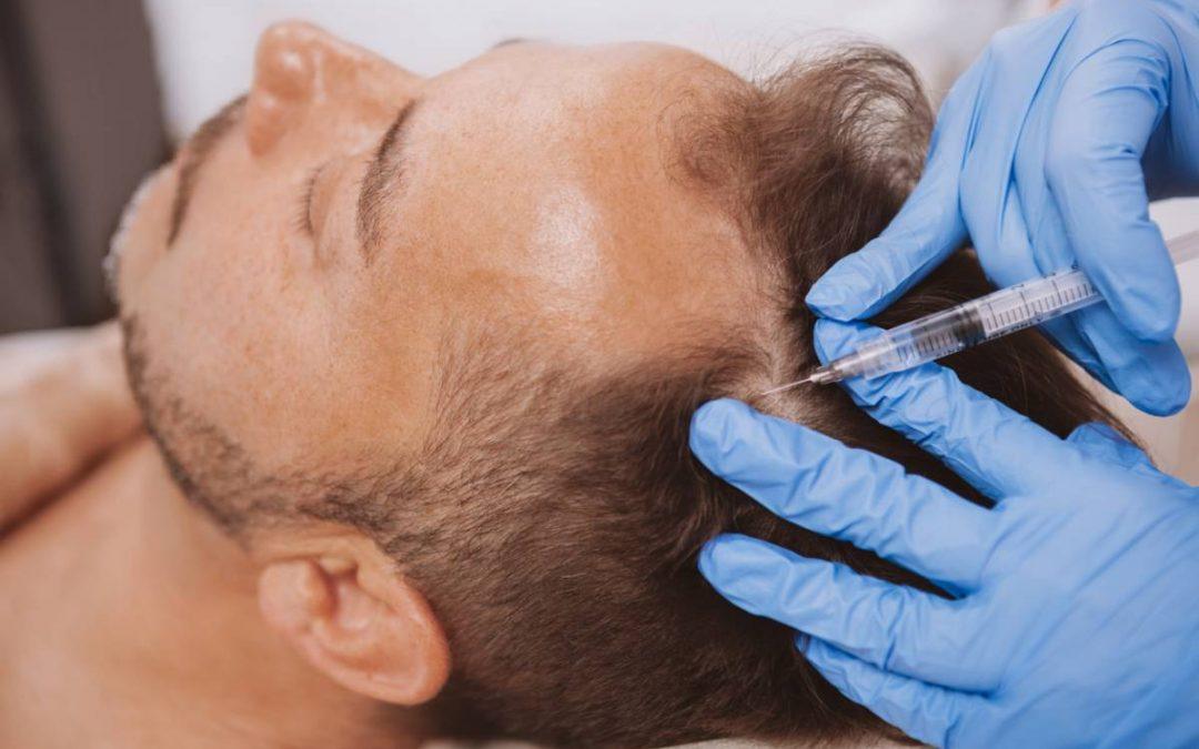 operation greffe de cheveux