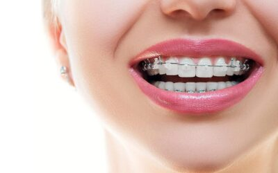 L'orthodontie: que devez-vous savoir?